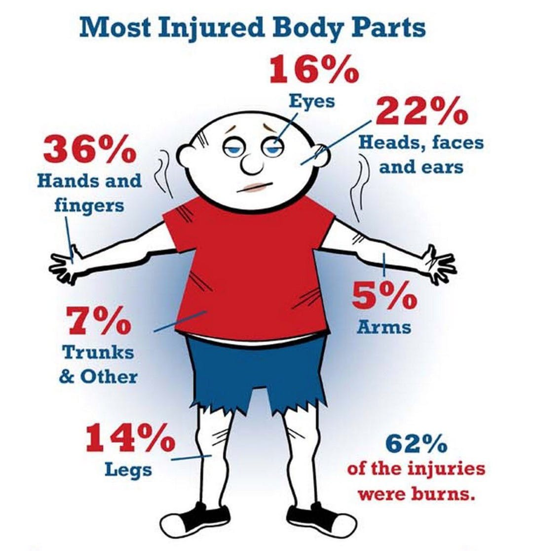 Setting off fireworks can really do damage to your body.